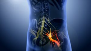 sciatic nerve pain and inflammation 3D Image